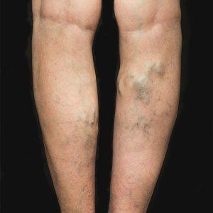 Varicose_Vein_Surgery_Legs