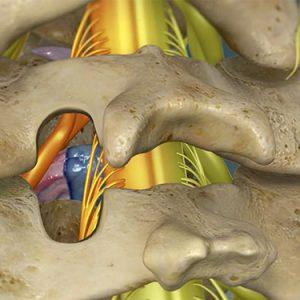 Cervical-Foraminotomy