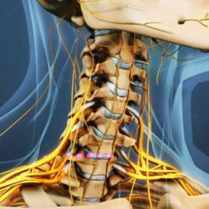 Cervical-Spinal-Stenosis