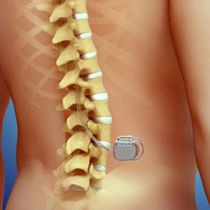 Thoracic-Spinal-Cord-Stimulator