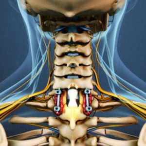 cervical-laminectomy-fusion