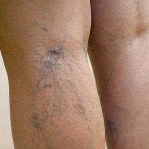 spider-veins-legs