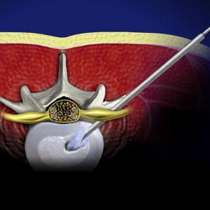 'Endoscopic Lumbar Discectomy' or 'bulging disc' surgical procedure Ellaboration