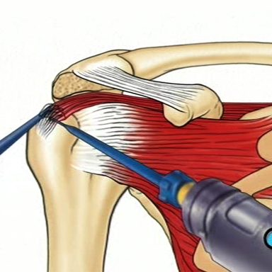 Graphical simplication of 'Arthroscopic Rotator Cuff Repair'