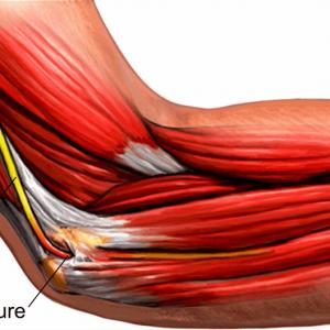A picture of 'Ulnar nerve & presure' illustration