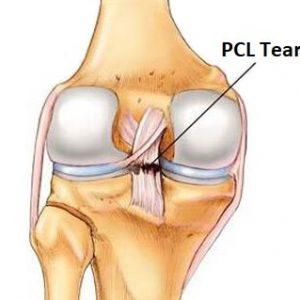 PCL-injury-knee