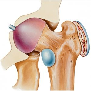 Hip Bursitis bone structure image