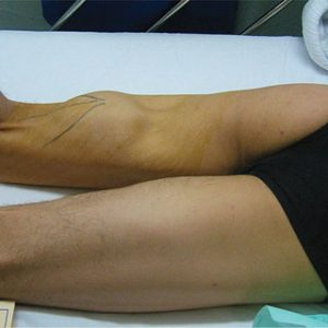 A patient is geeting hamstring treatment at complete medical wellness