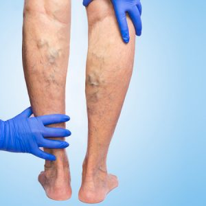Doctor examining the legs of a varicose vein patient at Complete Medical Wellness New Jersey