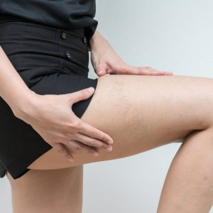 A female patient of varicose veins, showing her thigh