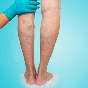 A patient suffering 'Chronic venous' insufficiency during his check-up at Complete Medical Wellness New Jersey