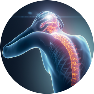 Image of 'Cervical Corpectomy' And Fusion at Complete Medical Wellness New Jersey