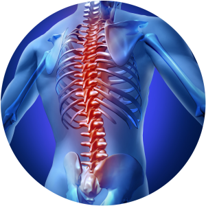Image of Thoracic Spinal Cord Stimulation at Complete Medical Wellness New Jersey