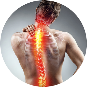 Image of a patient suffering from 'Thoracic degenerative disc disease' at Complete Medical Wellness New Jersey