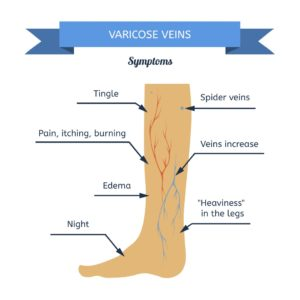 Graphical structure of human leg to elaborate 'varicose vein treatment'