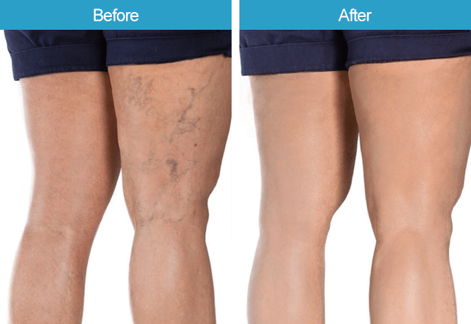 An image of 'vericose vein treatment' before and after treatment results