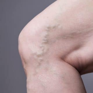 actual cause of varicose veins is the inability of valves