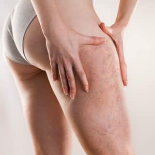 Image of symptoms related to varicose veins