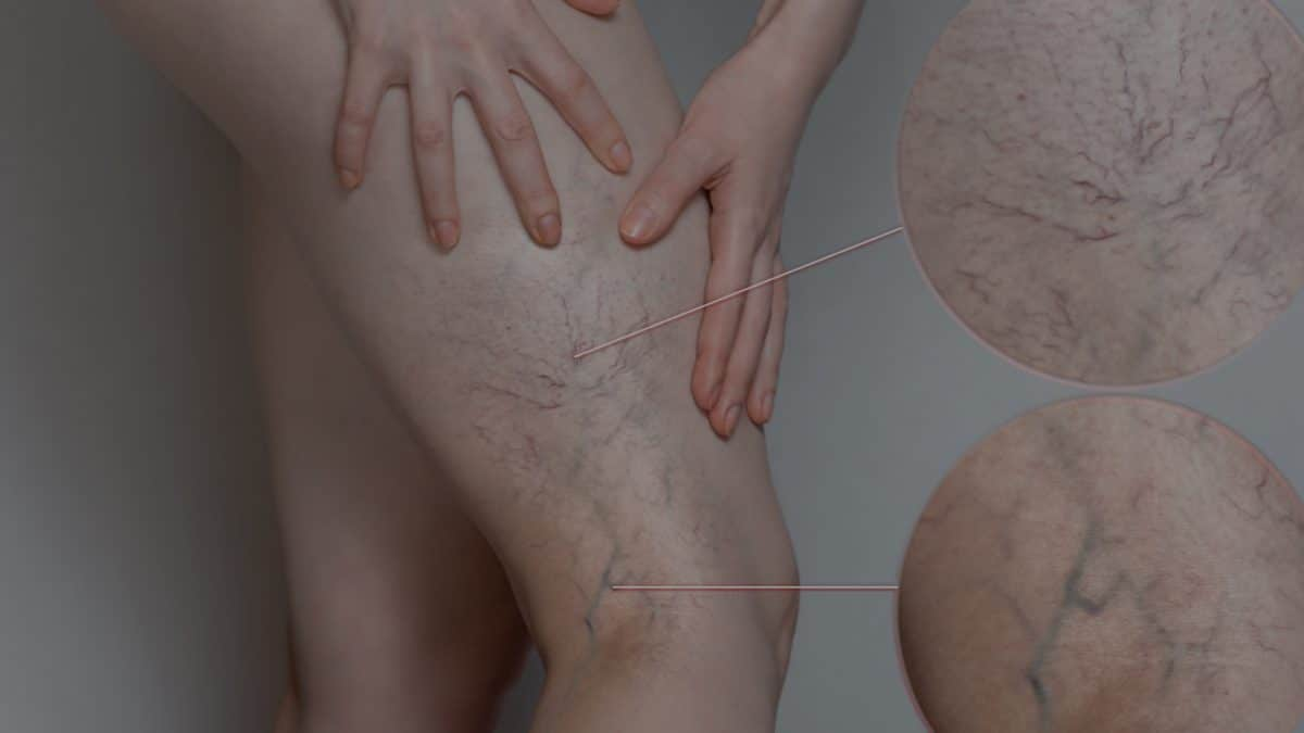 Pictures of a patient's' legs demonstrating varicose vein
