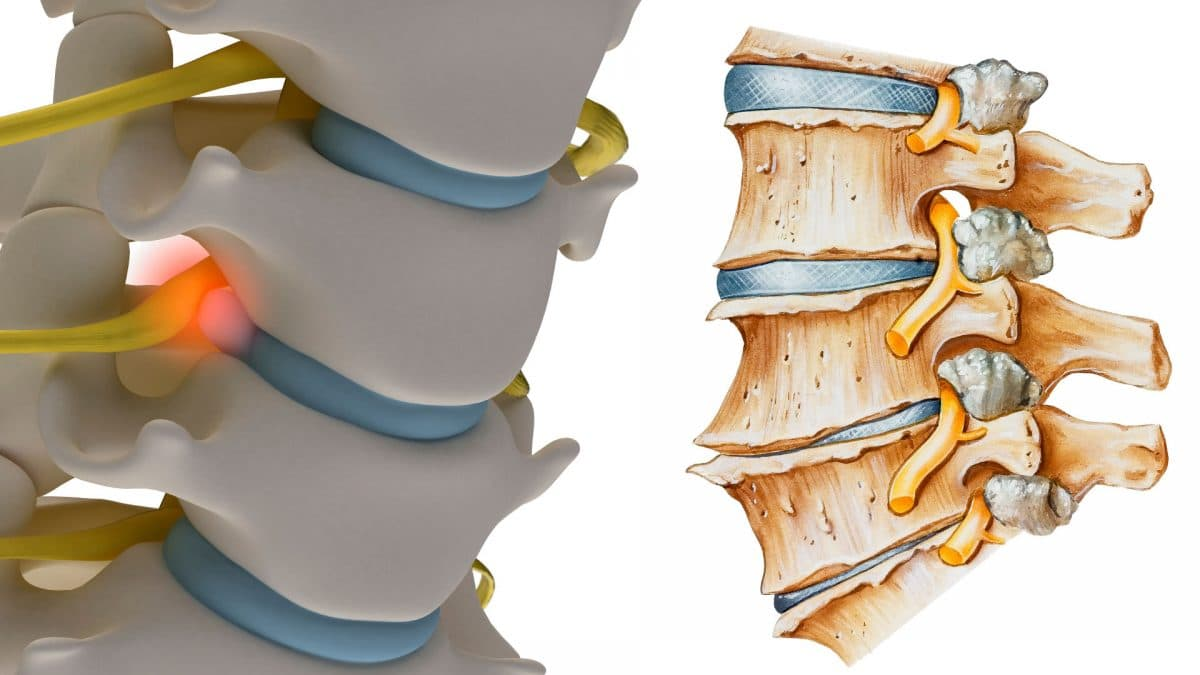 Back Pain Caused by a Disc Pinched