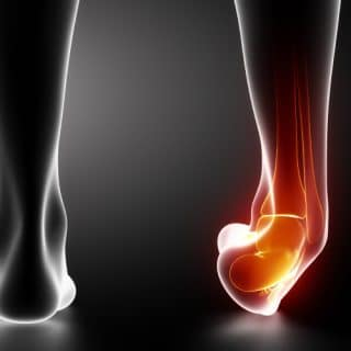 A person with a broken bone or an ankle sprain
